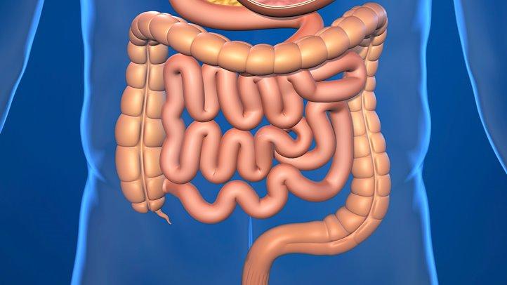 متلازمة القولون العصبي IBS