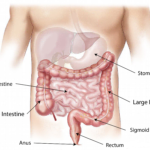 قرحة المعدة، الأسباب والأعراض والعلاج