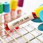 كوفيد -19: كيف يمكن أن يساعد اختبار الدم الجديد في تطوير اللقاح؟
